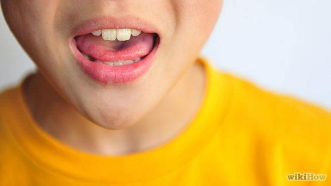 types of speech impediments